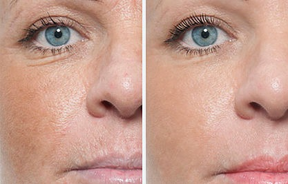 Dermaplaning Treatment Before and After