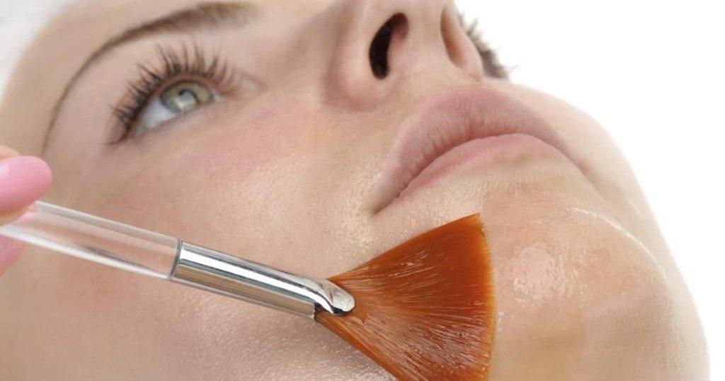 Chemical Skin Peel Treatment