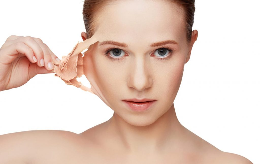 what to expect after a chemical peel