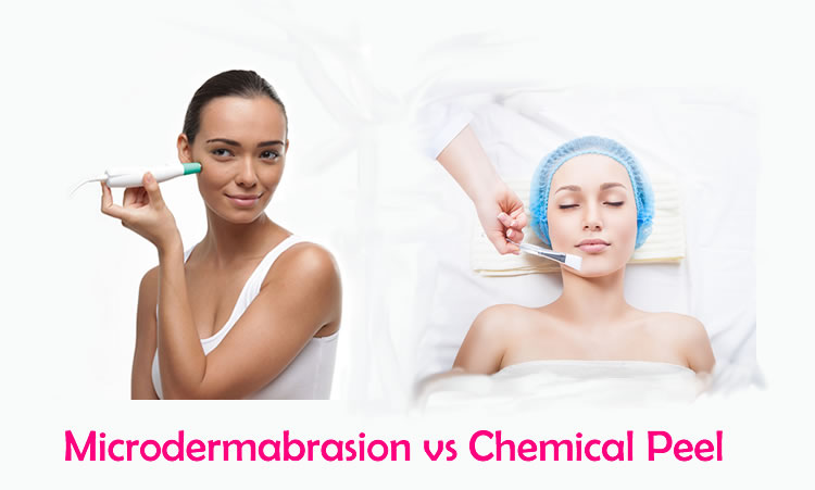 microdermabrasion vs chemical peel