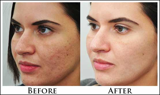 facial steaming before and after