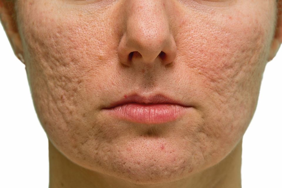 Get Rid of Old Acne Scars